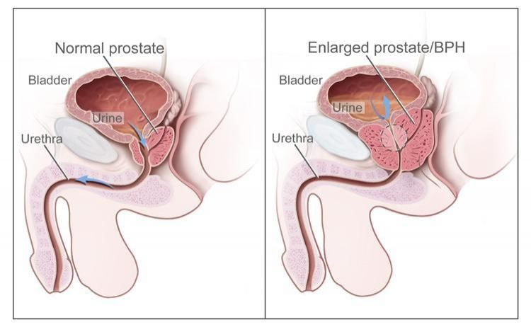 Dr. Thanki Prostrex powder