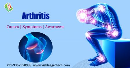 What Is Arthritis? - Symptoms and causes