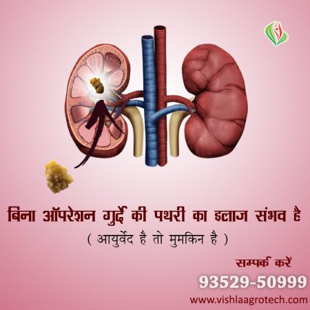 Treatment of Kidney Stone
