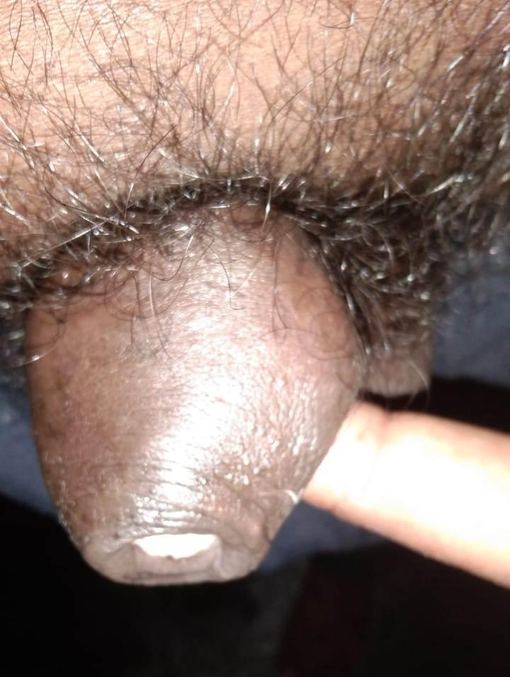 buduri-khaja-rao-penis-cancer-patient-treatment-4