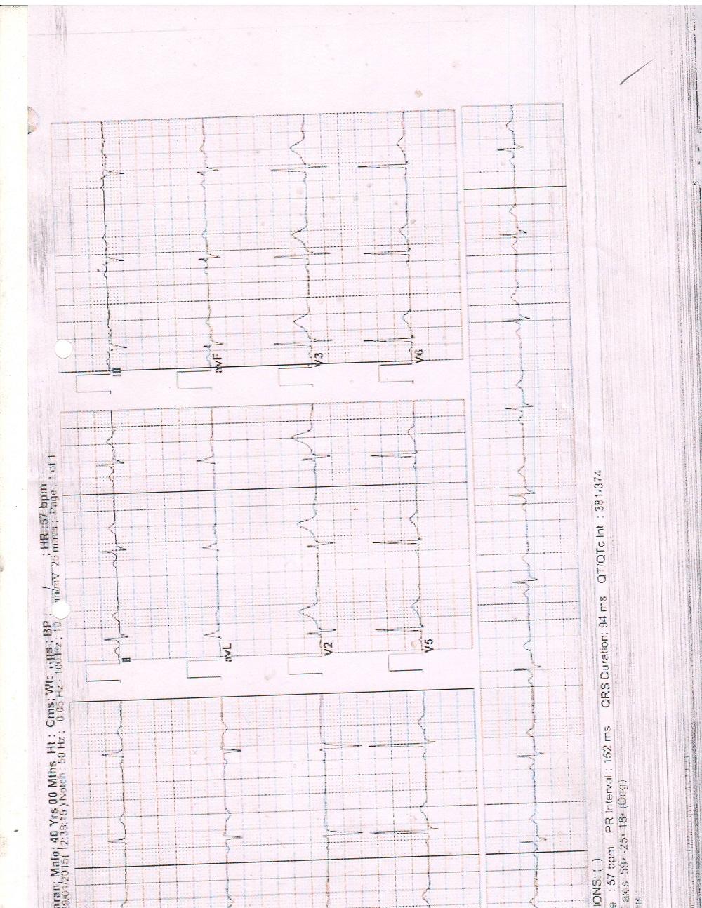 Ramkaran-Godara-Kidney-Failure-0005