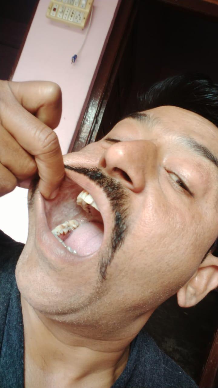 Sanjeev-yadav-mouth-cancer-2