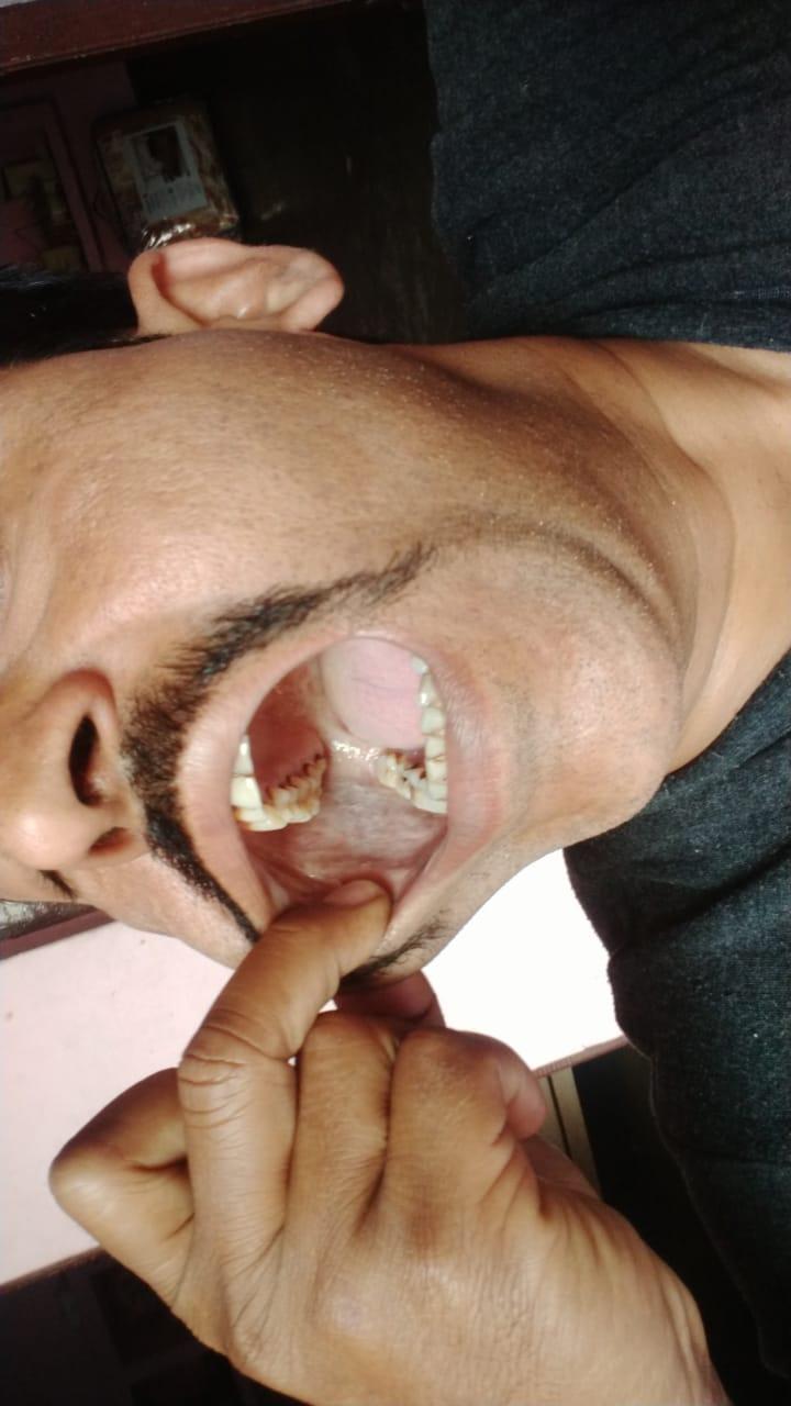 Sanjeev-yadav-mouth-cancer-3
