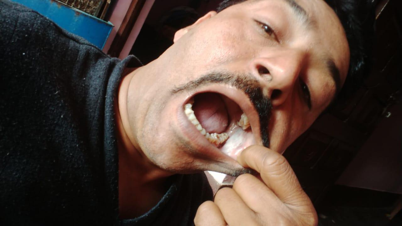 sanjeev-yadav-mouth-cancer-4