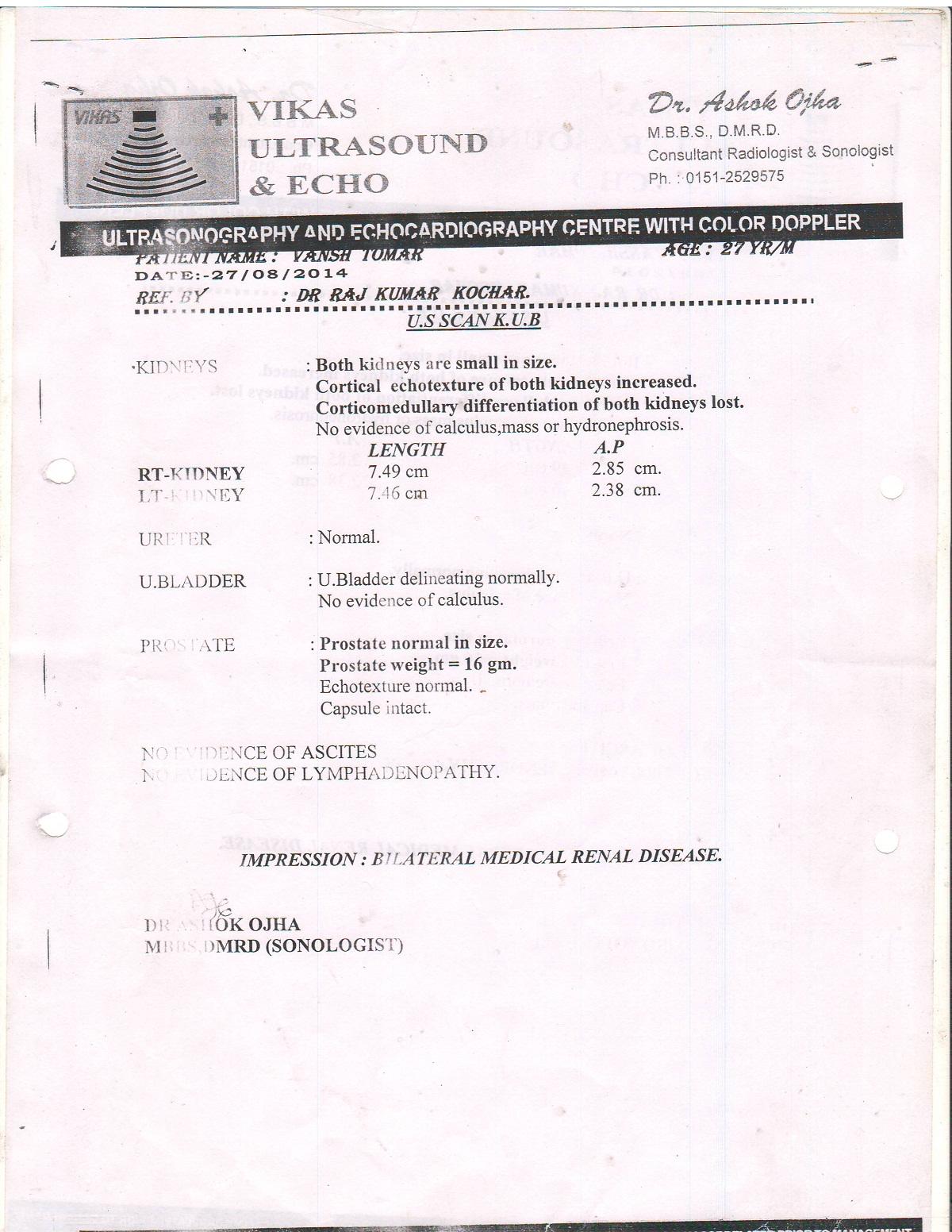 Vansh-kidney-failure-0009