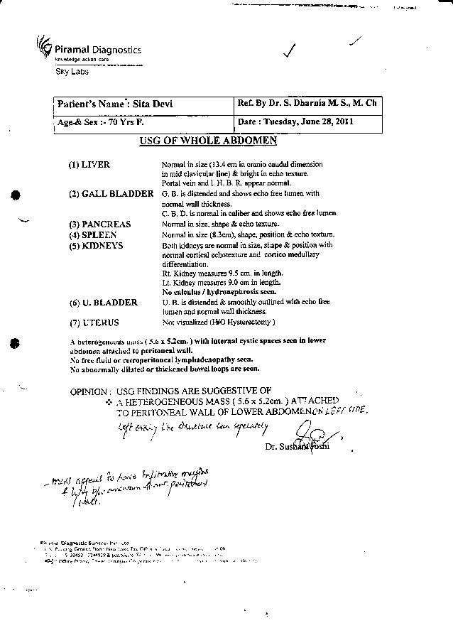 sita-Treatment-of-ovarian-adenocarcinom-Patient-2