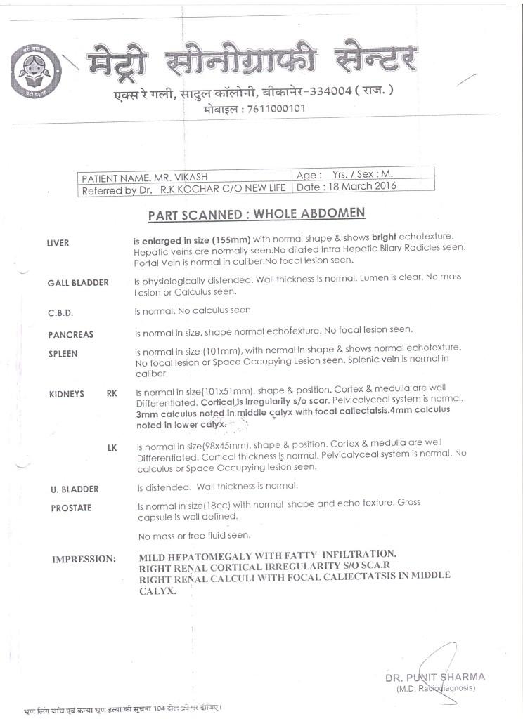 VIKASH-KHOSLA-44-Years-Kidney-Stone-treatment-1