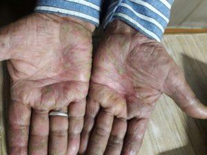 DEEP-CHAND-43-Years-Chronical-Eczema-Skin-Eczema-patient-treatment