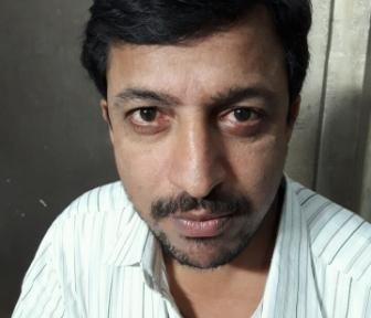AKHILESH PAGARE-43yrs-Rhumotoid fever since birth and diagnosed with abcess gland in left leg