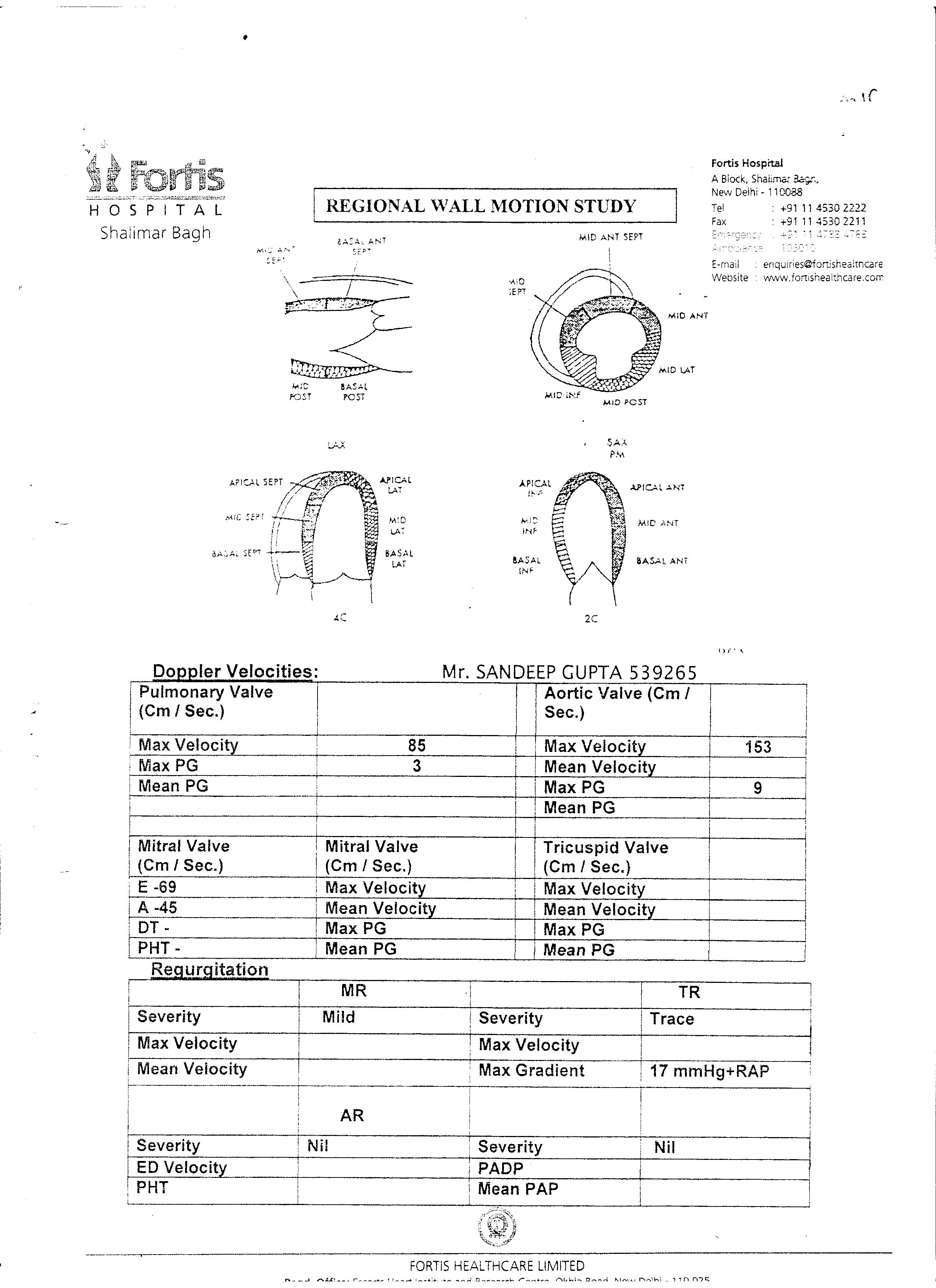 SANDEEP-GUPTA-43yrs-Kidney-Failure-Treatment-1