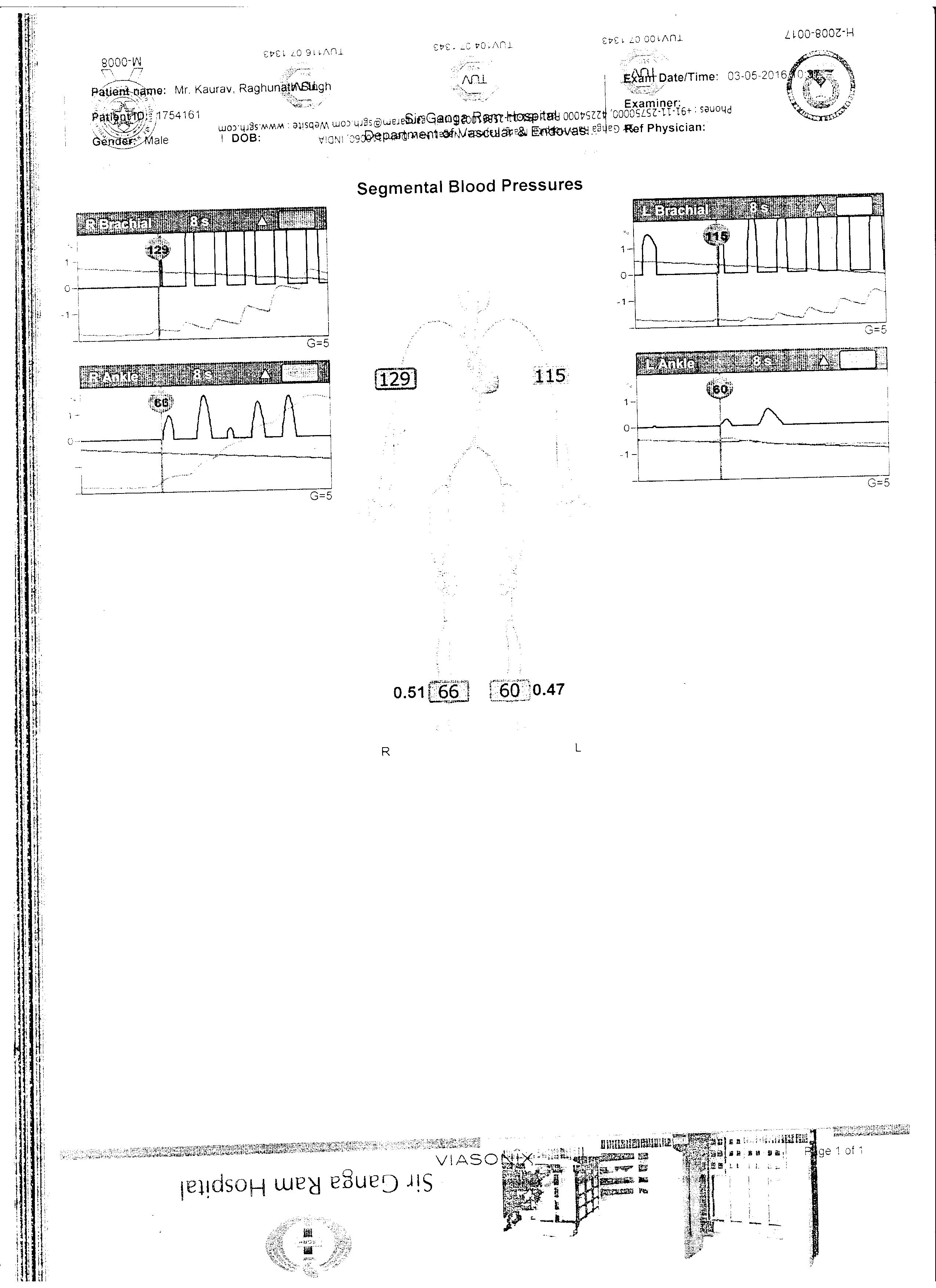 RAGHUNATH-SINGH-KAURAV-57-Yrs-DVT-treatment-1