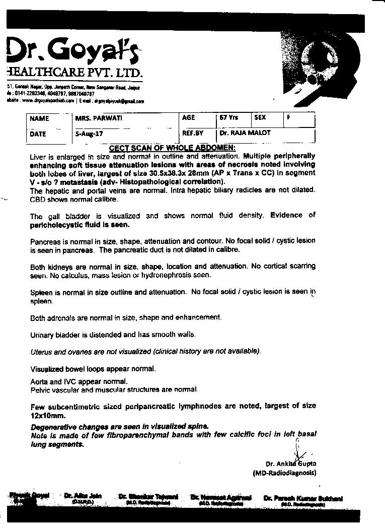 PARWATI-KUMAWAT-65yrs-Liver-Cancer-treatment-2