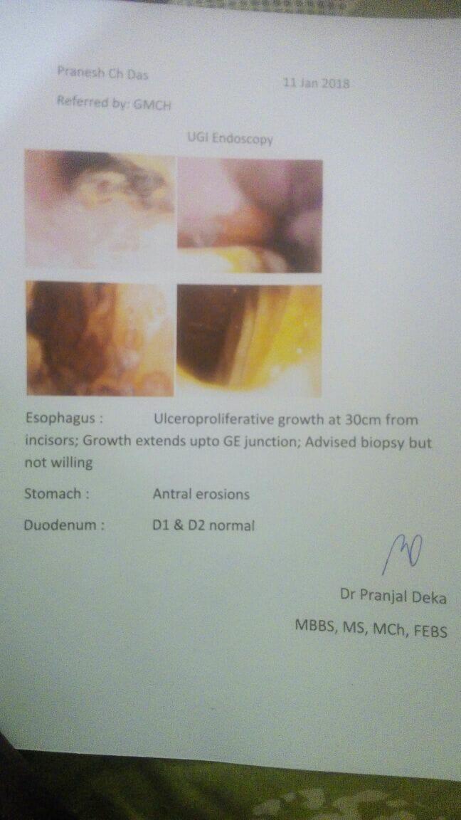 Pranesh-chandra-das-58yrs-Oesophagus-cancer-Treatment-1
